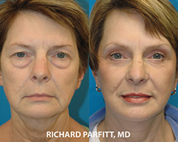 Eyelid Rejuvenation plastic surgery before and after Madison WI