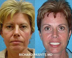 facelift before and after Appleton WI