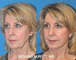 Madison WI dramatic facelift before and after facial plastic surgery