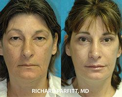 facial rejuvenation before and after Dr Parfitt