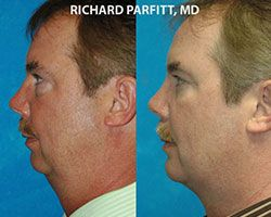 male before and after plastic surgery WI