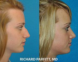 nose job appleton wi