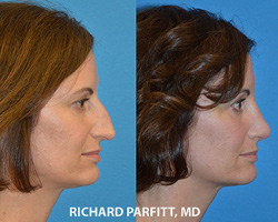 Best Before and After Photos Plastic Surgery Madison WI