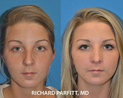 Rhinoplasty-Nose-Job-Madison-WI