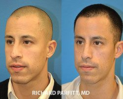 male plastic surgery nose job