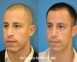 male rhinoplasty before and after plastic surgery Middleton WI