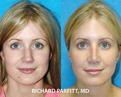 female nose job before and after cosmetic surgery Wisconsin