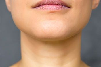 SUBMENTAL (NECK) LIPOSUCTION