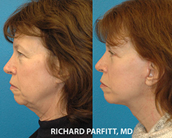 Best Facelift Surgeon Madison WI