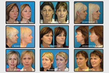 wi-plastic-surgery-before-after-facelift