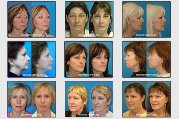 WI-Plastic-Surgery-Before-After-Facelift2