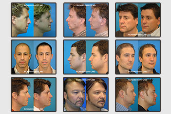 wi-plastic-surgery-before-after-male-facial-procedures