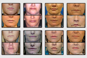 wi-plastic-surgery-photos-lip-enhancement