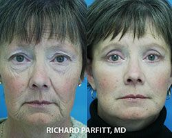 blepharoplasty facelift before and after plastic surgery Dr Parfitt