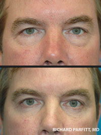 male before and after eyelid surgery