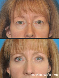 eyelid surgery before and after WI