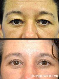 eyelid surgery parfitt WI