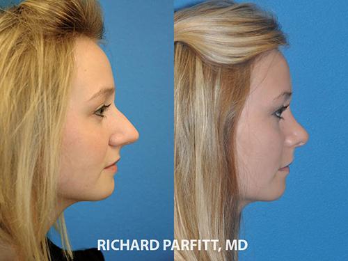 rhinoplasty information