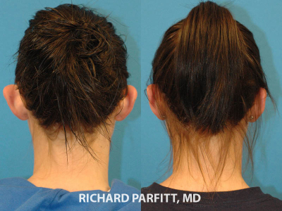 otoplasty-large-ears-surgery-Middleton-WI-before-and-after-Parfitt