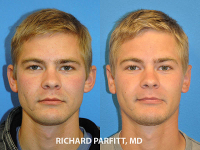 otoplasty-large-ears-surgery-Appleton-WI-before-and-after-Parfitt