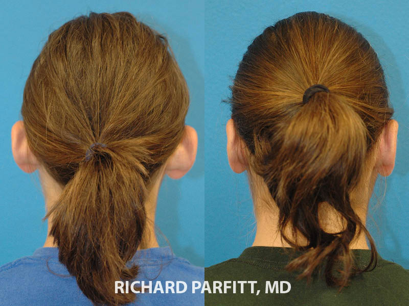 ear-pinning-surgery-Appleton-WI-before-and-after-Parfitt