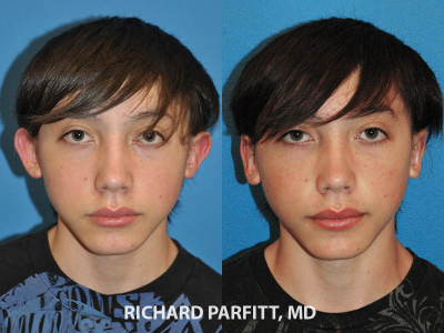 otoplasty-Madison-WI-male-patient-before-and-after