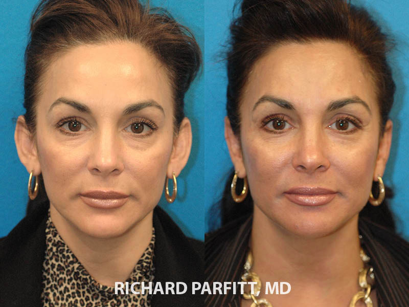 otoplasty-Appleton-WI-female-patient-before-and-after