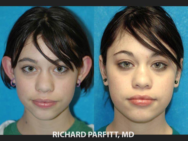 ear-surgery-for-protruding-ears-Madison-WI-before-and-after
