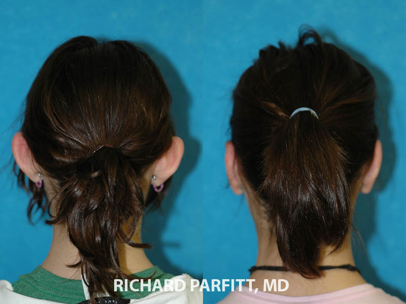 ear-surgery-for-protruding-ears-Appleton-WI-before-and-after