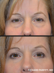 lower blepharoplasty procedure before and after