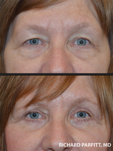 before and after eyelid rejuvenation surgery