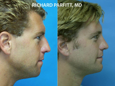 plastic surgery chin implant male before and after