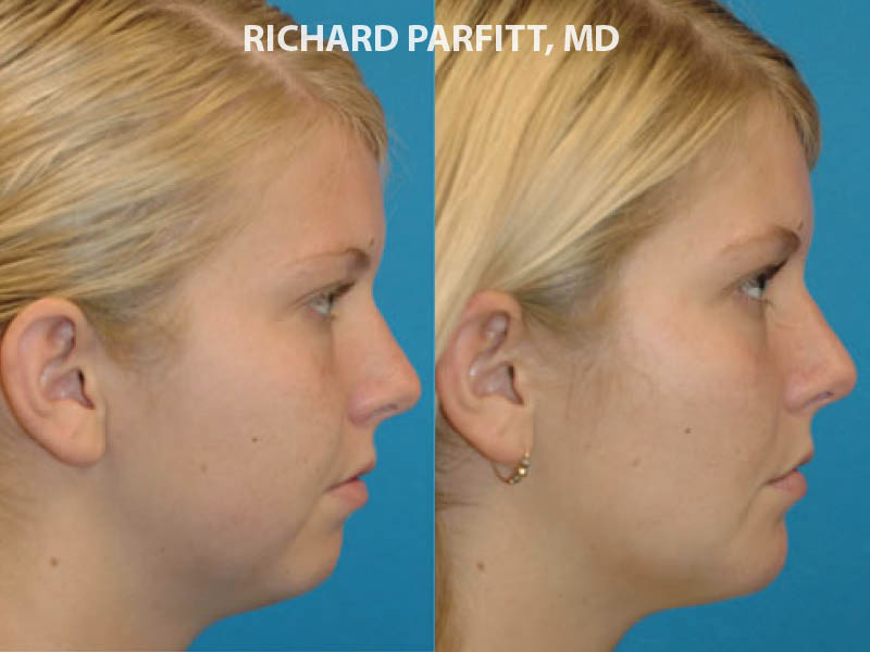 Madison plastic surgery chin implant side view before and after