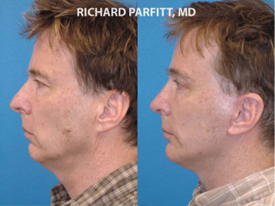 chin augmentation nose job Wisconsin plastic surgery