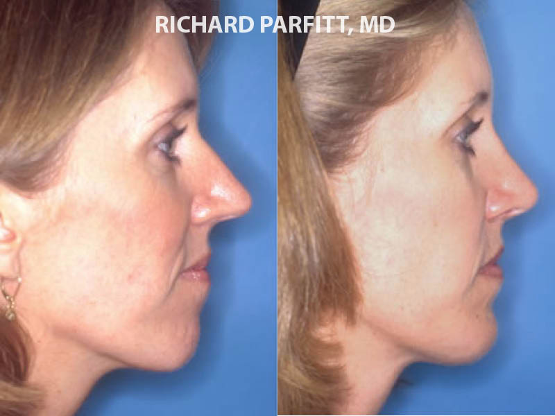 chin implant WI before and after case