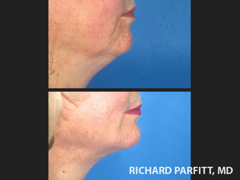 chin augmentation before and after patient side view Appleton WI