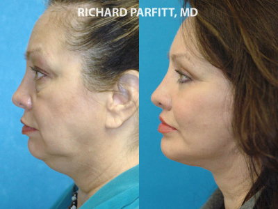 Appleton Wisconsin chin augmentation before and after side view
