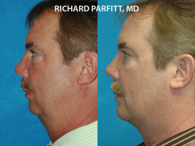 chin implant surgery before and after male WI patient