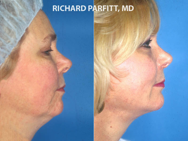 Chicago chin implant plastic surgery face