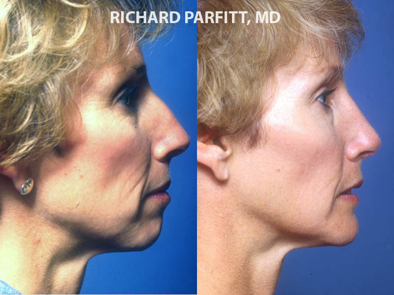 Milwaukee chin implant face surgery before and after