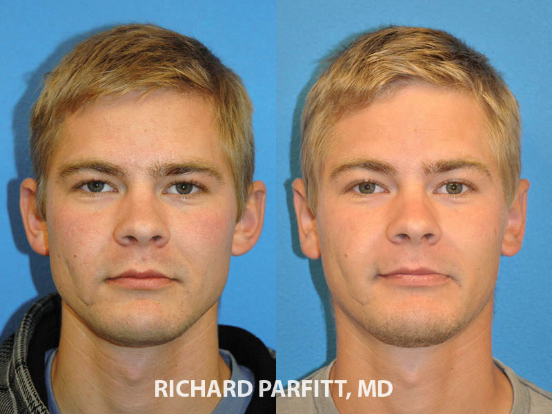 male ear surgery otoplasty before and after Wisconsin patient front view
