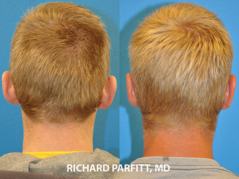 male ear surgery otoplasty before and after Wisconsin patient back view