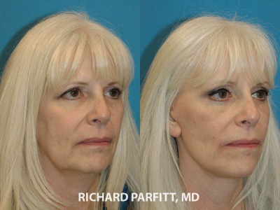 female facial rejuvenation before and after Appleton WI plastic surgeon