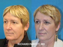 facelift before and after best plastic surgeon Madison WI