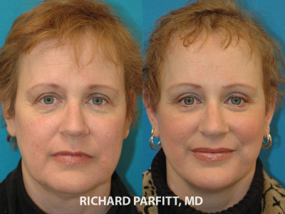 Madison facelift expert before and after facelift plastic surgery