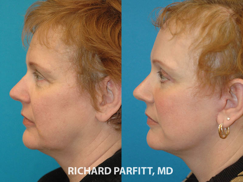 55 year old facelift before and after cosmetic surgery Milwaukee WI