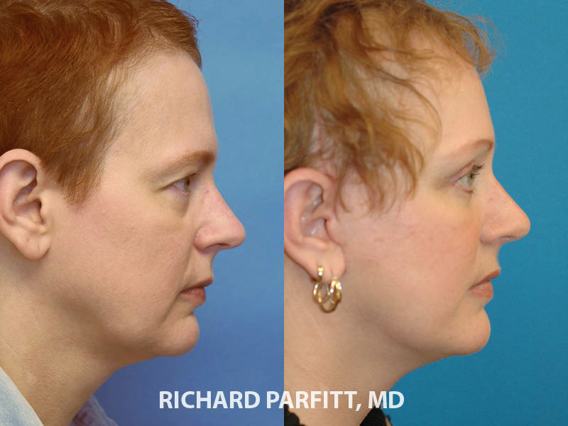 female deep plane facelift eyelid surgery before and after surgery Madison WI