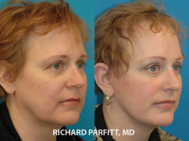 Madison WI facial plastic surgeon facelift before and after