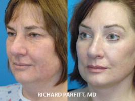Appleton WI facial plastic surgeon facelift before and after