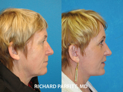 female facial rejuvenation before and after Chicago IL plastic surgery